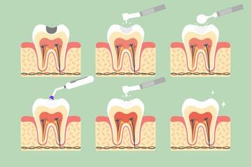 Diş dolgusu süreci