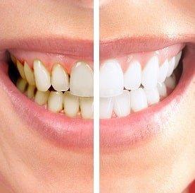 Diş temizleme ve beyazlatma
