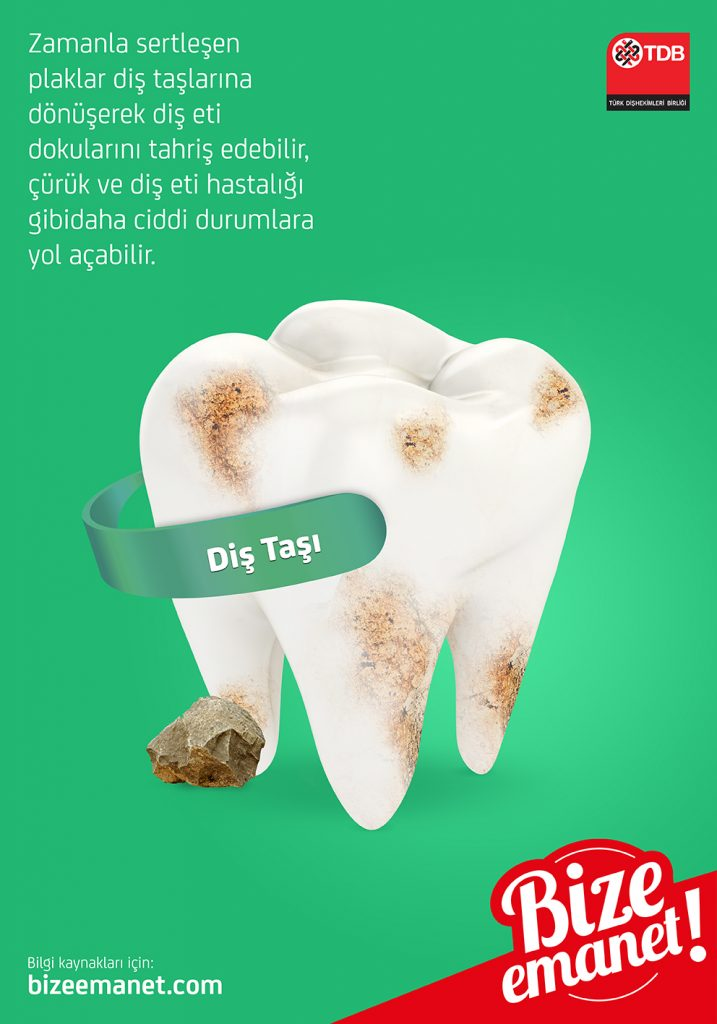 Dişlerde birikmiş diş taşları, profesyonel temizlik gerektirir.
