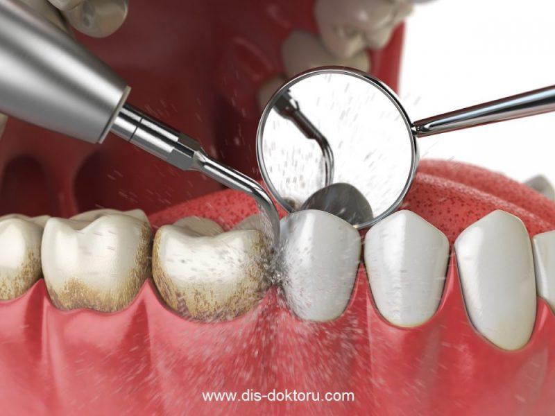 Profesyonel Diş Temizliği